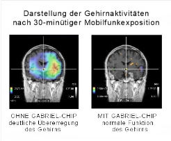 image: Darstellung Hirnaktivität mit Gabriel-Tech