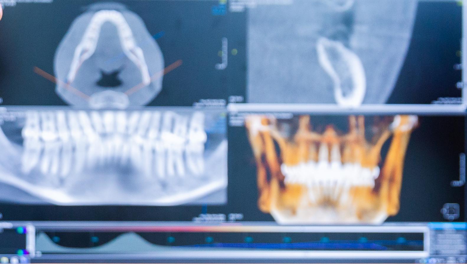 Beispiel eines 3D-Röntgenbildes