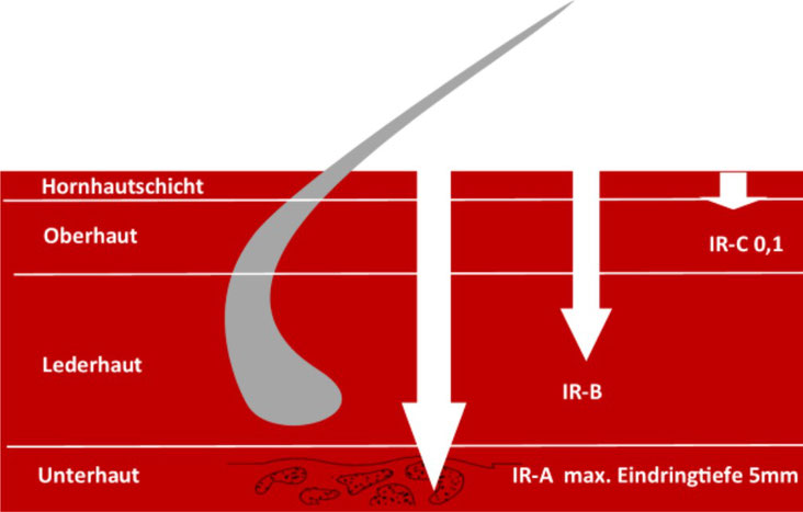 "Bild ""Infrarot"" des AMM-Marktplatzpartners BigestaMED"