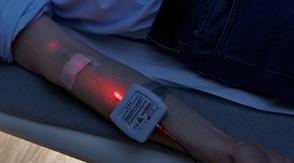Abbildung einer Anwendung der AMM-Produktempfehlung Hilaris TL Haemo-Laser von VitaCellScan